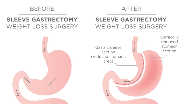 What is Gastric Sleeve surgery?