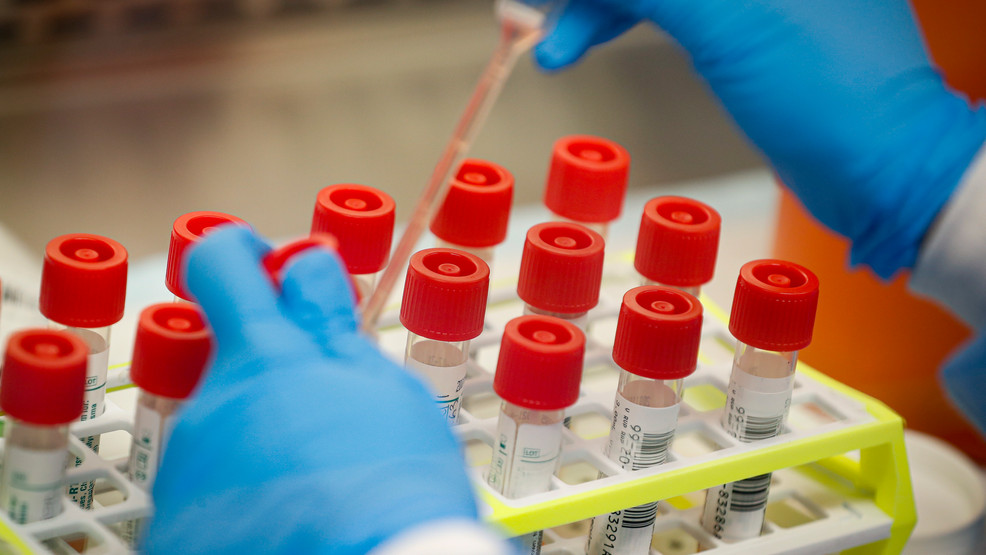 Oregon reports 5 more coronavirus deaths, bringing death toll to 109