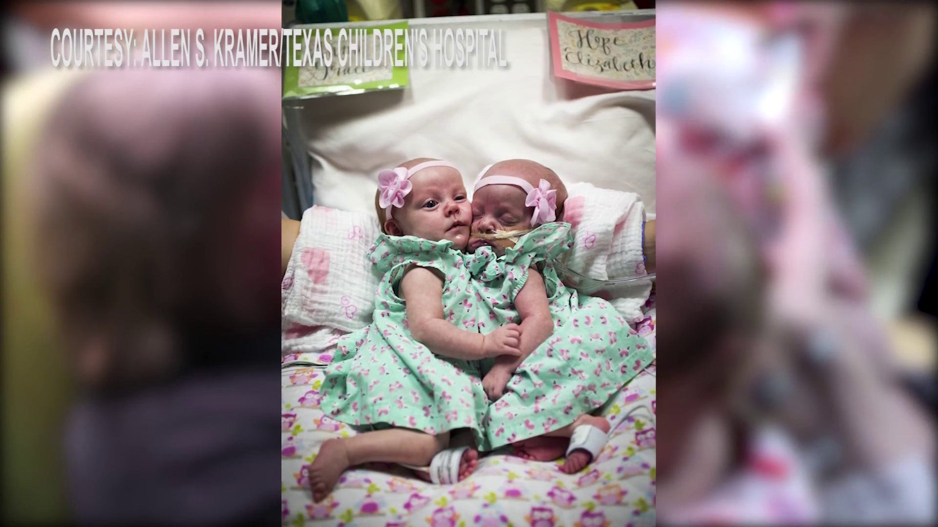 Doctors in Houston have successfully separated toddler girls who were born in 2016 conjoined at the chest and abdomen. (Image/video courtesy: Allen S. Kramer / Texas Children's Hospital / KHOU / Newspath)