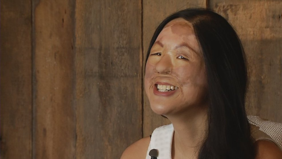 angel faces helps women overcome disfiguring injuries wgme