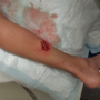 Hurdland boy bitten by shark in Florida