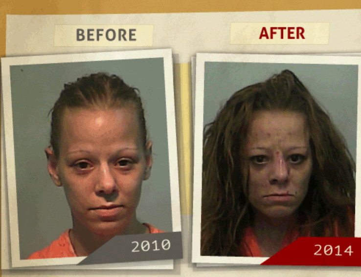 Side-by-side 2010 and 2014 photo taken of woman who reportedly had a 'possession of drugs ' charge. (Photo, info from rehabs.com/)