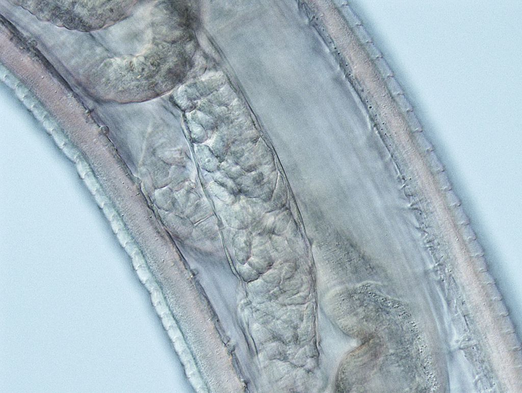 Thelazia gulosa mid body with prominent cuticular striations, intestinal tube, and ovaries containing spirurid eggs - CDC photo<p></p>