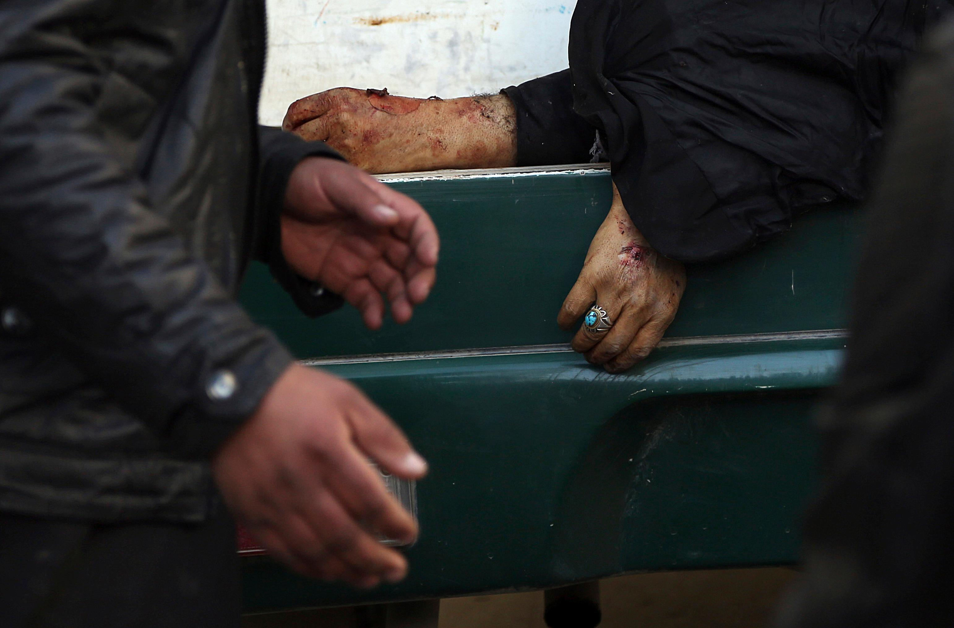 A man passes the hand of a deceased woman on a stretcher in a hospital following a suicide attack in Kabul, Afghanistan, Thursday, Dec. 28, 2017. Authorities say two simultaneous attacks in Afghanistan's capital have left dozens dead. (AP Photo/Rahmat Gul)